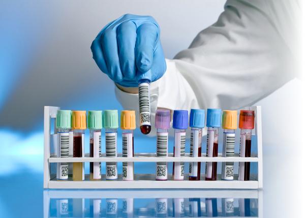 Muestra de sangre con ébola extraviada