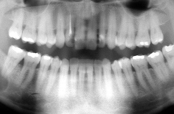Post estudio relaciona rayos x dentales con tumores for Cuarto de rayos x odontologia